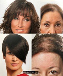 Da FRANCESCO STILE trovi le migliori soluzioni per combattere l'alopecia